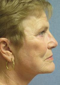 Facial Surgery Case 102 - Face Lift - After
