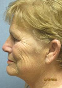 Facial Surgery Case 102 - Face Lift - Before