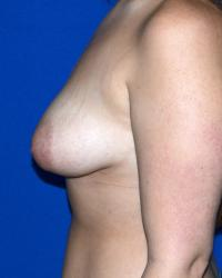 Breast Surgery Case 1031 - Breast Asymmetry Correction - Before