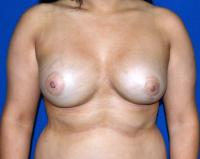 Breast Surgery Case 1031 - Breast Asymmetry Correction - After