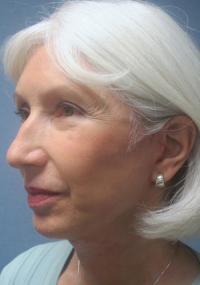 Facial Surgery Case 104 - Face Lift - After