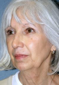 Facial Surgery Case 104 - Face Lift - Before