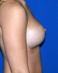 Breast Surgery Case 1051 - Breast Augmentation - After