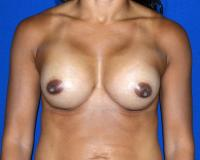Breast Surgery Case 1061 - Breast Augmentation - After