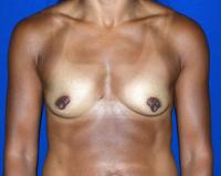 Breast Surgery Case 1061 - Breast Augmentation - Before