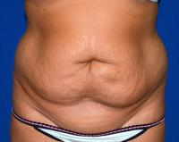Body Contouring Case 1071 - Tummy Tuck, Flanks, Waist - Before