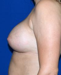 Breast Surgery Case 1081 - Breast Augmentation - After