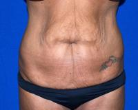 Body Contouring Case 1091 - Tummy Tuck, Flanks, Waist - Before