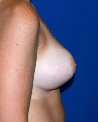 Breast Surgery Case 1101 - Breast Augmentation - After
