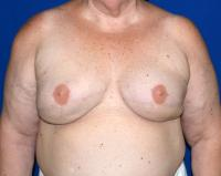 Breast Reconstruction Case 1111 - Two-Stage Reconstruction - After