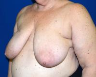 Breast Reconstruction Case 1111 - Two-Stage Reconstruction - Before