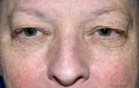 Facial Surgery Case 1121 - Eyelid Surgery - Before