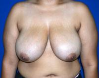Breast Surgery Case 1131 - Breast Reduction - Before