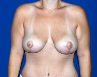 Breast Surgery Case 1161 - Breast Lift - After