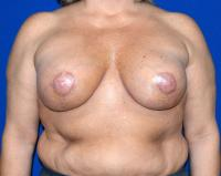 Breast Surgery Case 1171 - Breast Lift with Augmentation - After