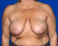 Breast Surgery Case 1171 - Breast Lift with Augmentation - Before