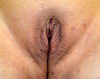 Body Contouring Case 1211 - labiaplasty - After