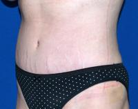 Body Contouring Case 1221 - Tummy Tuck, Arms, Back, Waist - After