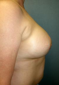 Breast Surgery Case 125 - Breast Augmentation - After