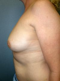 Breast Surgery Case 125 - Breast Augmentation - Before