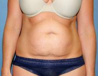 Body Contouring Case 127 - Tummy Tuck, Flanks, Waist - Before