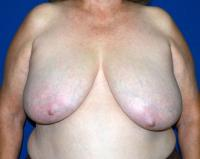 Breast Surgery Case 1281 - Breast Reduction - Before