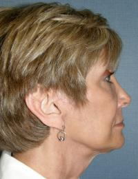 Facial Surgery Case 129 - Face Lift - After