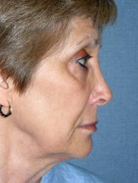 Facial Surgery Case 129 - Face Lift - Before