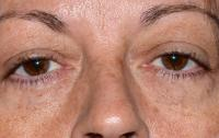 Facial Surgery Case 1291 - Eyelid Surgery - Before