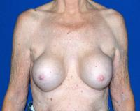 Breast Surgery Case 1321 - Breast Implant Revision - Before