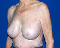 Breast Surgery Case 1321 - Breast Implant Revision - After