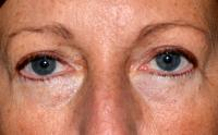 Facial Surgery Case 1331 - Eyelid Surgery - After