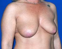 Breast Surgery Case 1361 - Breast Lift with Augmentation - Before