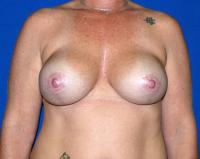 Breast Surgery Case 1361 - Breast Lift with Augmentation - After