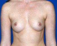 Breast Surgery Case 1401 - Breast Augmentation - Before