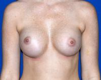 Breast Surgery Case 1401 - Breast Augmentation - After