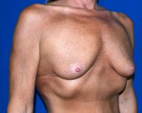 Breast Surgery Case 1431 - Breast Augmentation - Before