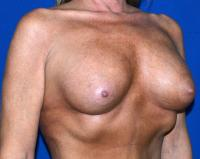 Breast Surgery Case 1431 - Breast Augmentation - After