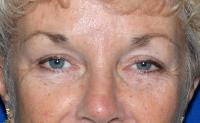 Facial Surgery Case 1461 - Brow Lift - After