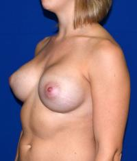 Breast Surgery Case 147 - Breast Augmentation - After