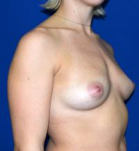 Breast Surgery Case 147 - Breast Augmentation - Before
