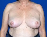 Breast Surgery Case 1471 - Breast Reduction - After