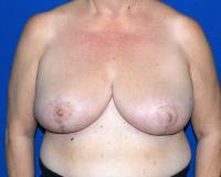 Breast Surgery Case 1481 - Breast Reduction - After