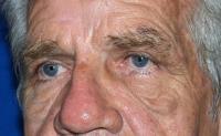 Facial Surgery Case 152 - Eyelid Surgery - Before