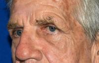 Facial Surgery Case 152 - Eyelid Surgery - After