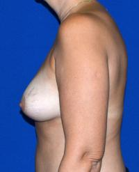 Breast Surgery Case 153 - Breast Lift - After