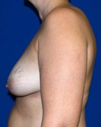 Breast Surgery Case 153 - Breast Lift - Before