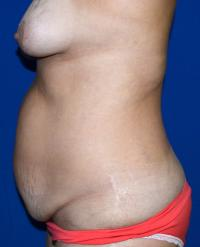 Body Contouring Case 154 - Tummy Tuck, Flanks, Waist - Before