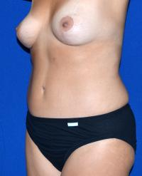 Body Contouring Case 154 - Tummy Tuck, Flanks, Waist - After