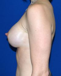 Breast Surgery Case 156 - Breast Augmentation - After